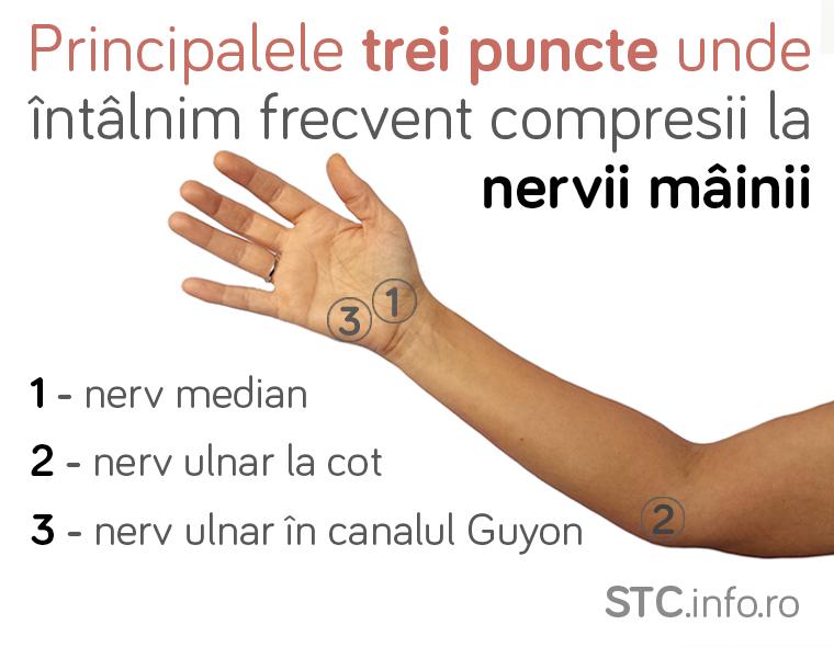 Neuropatii de compresie asociate cu Sindromul de tunel carpian